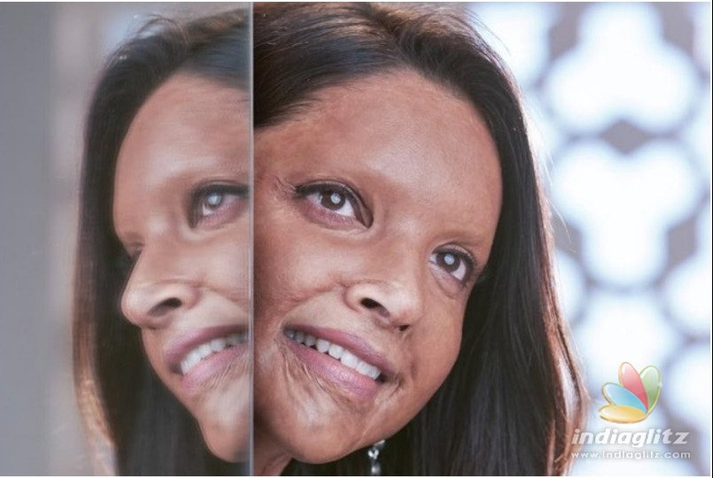 Deepika Padukone's Pic As Malti From 'Chhapaak' Goes Viral!
