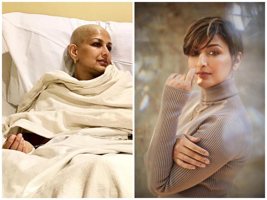 cancer survivor day sonali