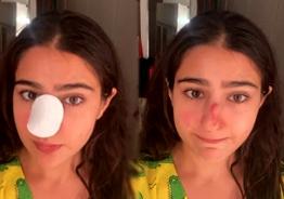 Actress Sara Ali Khan injures her nose