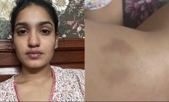 COVID-19: Saniya Iyappan shares her tragic experience