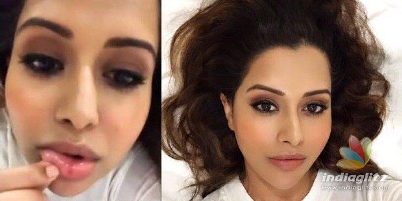 Raiza Wilson hurt in a selfie accident