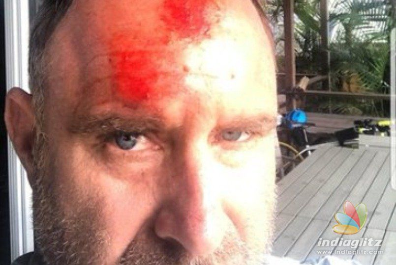 Former Australian/CSK cricketer Mathew Hayden seriously injured in freak accident