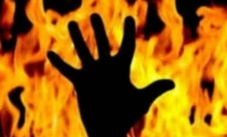 Chennai: Man arrested for setting wife on fire