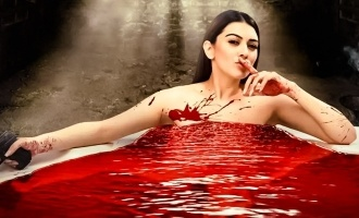Hansika Motwani gets hurt!