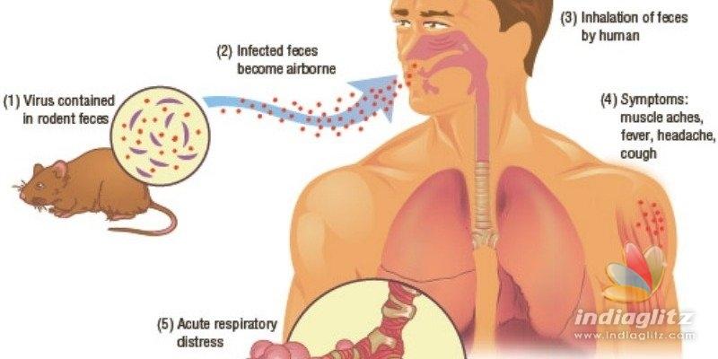 China man dies of Hantavirus - Is it more dangerous than Coronavirus?