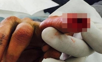Famous actor shares picture of his broken finger after physical abuse by wife