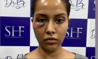 Doctor clarifies what exactly happened to Raiza Wilson's facial treatment