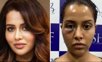 Raiza Wilson shares photo about her face conditon now - What will be her decision?
