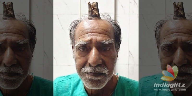 Photos show huge four inch devil horn growth removed from man's head