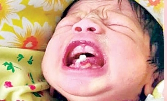 Infant born with teeth undergoes surgery