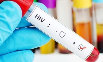 HIV-related deaths on the decline: Report