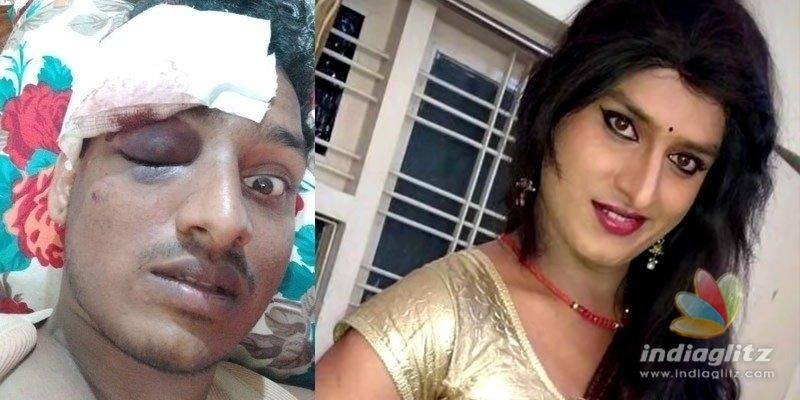 జబర్దస్త్ వినోదినిపై దాడి.. అసలేం జరిగింది!
