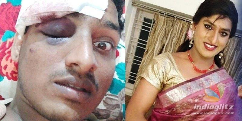 Jabardasth Vinodini severely injured in attack