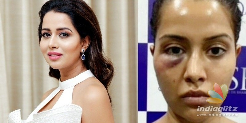 Raiza Wilsons facial treatment goes wrong, blames dermatologist